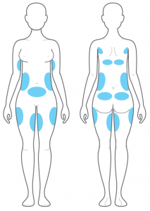 Areas-able-to-be-targeted-by-Clatuu-coolsculpting-cryolipolysis-213x300