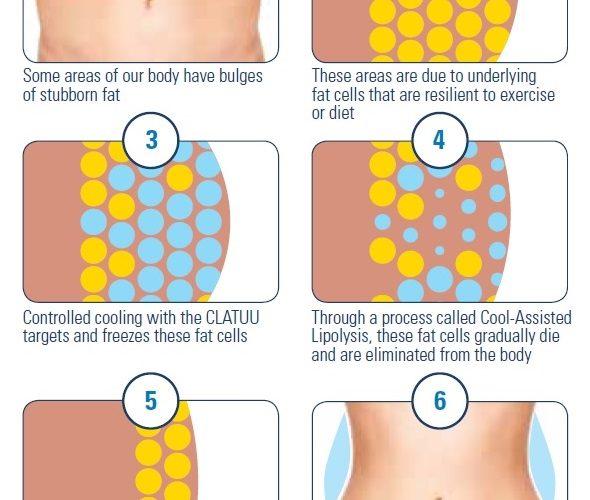 Clatuu-Process